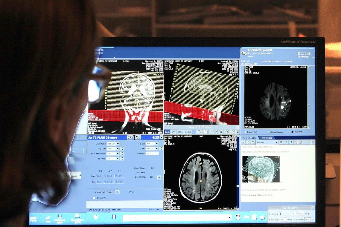 Photo of stroke imaging