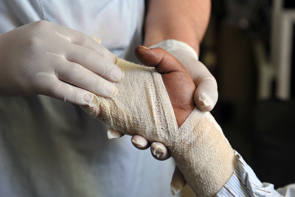 photo of latex-wearing hands holding the gauze-wrapped hand of a burn victim