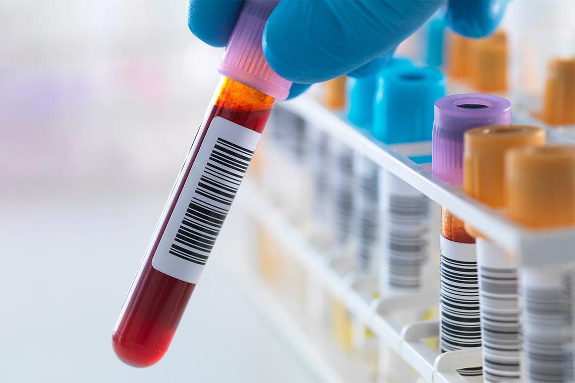 Blood sample in a vial