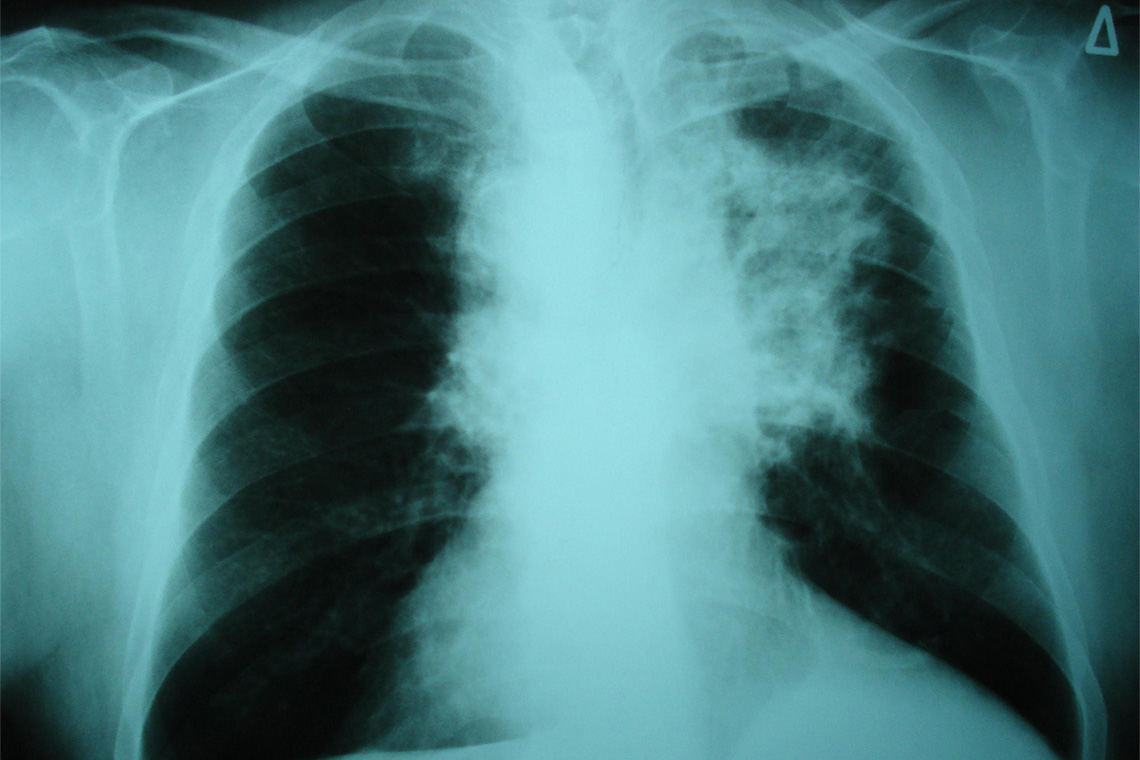 photo of a chest x-ray