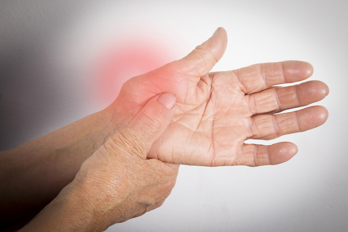 Photo of arthritic hands