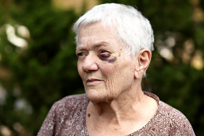 Photo of older person with black eye